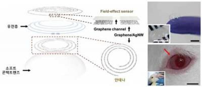 Graphene lens sensor for disease monitoring image