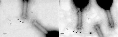 Image of bacteriophage using graphene-enhanced microscope